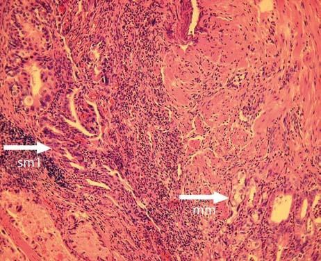 Histologický nález z resekátu s patrnou invazí adenokarcinomu do první třetiny submukózy. Fig. 3. Histological finding in the tissue specimen obtained by EMR recognizing a submucosal invasion of the adenocarcinoma.