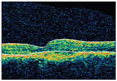 OCT snímek levého oka před léčbou
