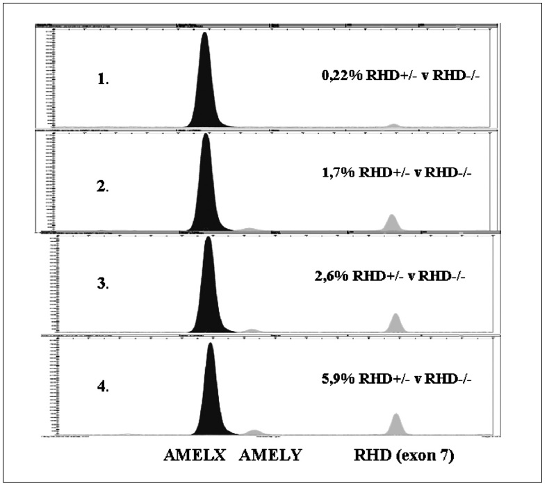 Ukázka citlivosti detekce SNaPshot systémem. Stanovení citlivosti detekce s využitím minisekvenace (SNaPshot) RHD pozitivních vzorků arteficiálních genotypových směsí (<i>RHD</i>+/- mužské DNA a <i>RHD</i>-/- ženské DNA) kapilární elektroforézou. V první až čtvrté řadě jsou  ukázky 0,22%, 1,7%, 2,6% a 5,9% arteficiálních genotypových směsí.
