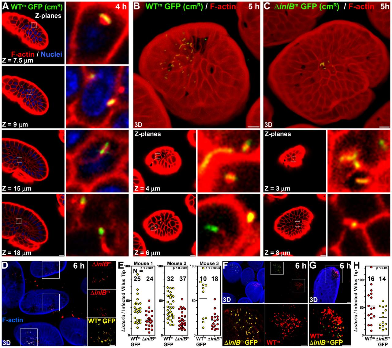 InlB-mediates invasion of intestinal villus tips.