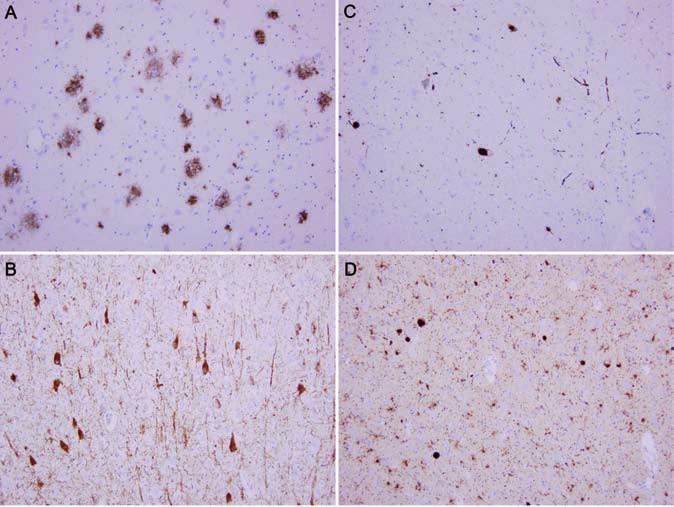 Neuropatologický obraz vyšetření mozkové tkáně.