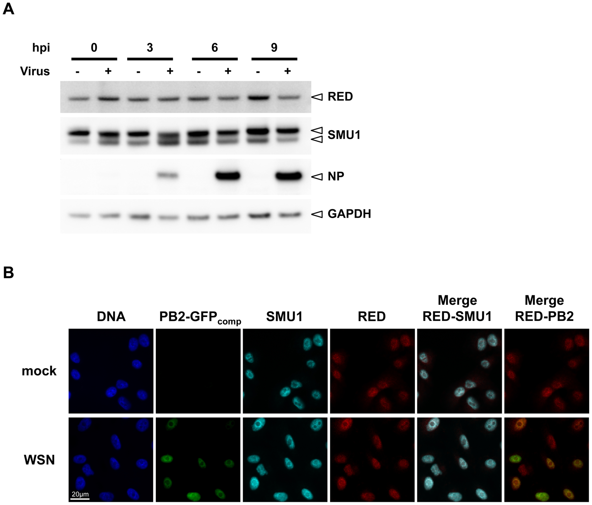 Steady-state levels and subcellular localisation of endogenous RED and SMU1 in infected cells.