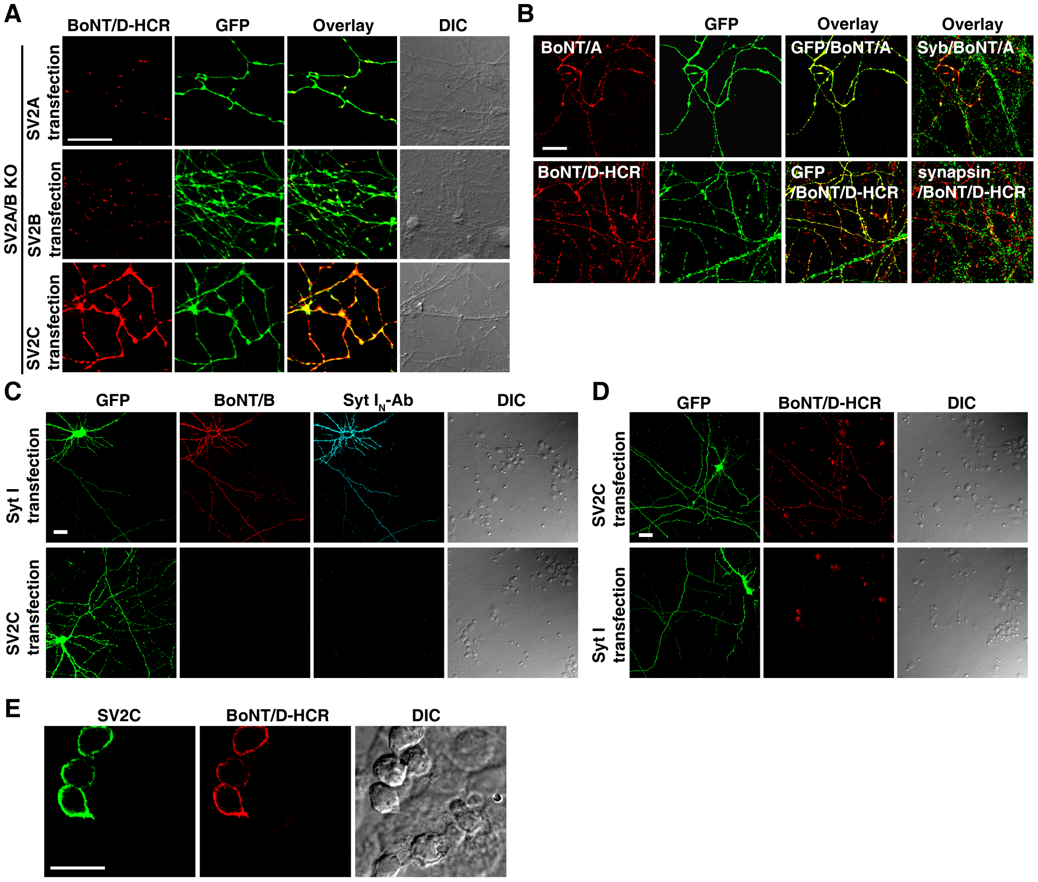 Localization of SV2C to plasma membranes mediated binding of BoNT/D-HCR to the cell surface in both neurons and HEK293FT cells.