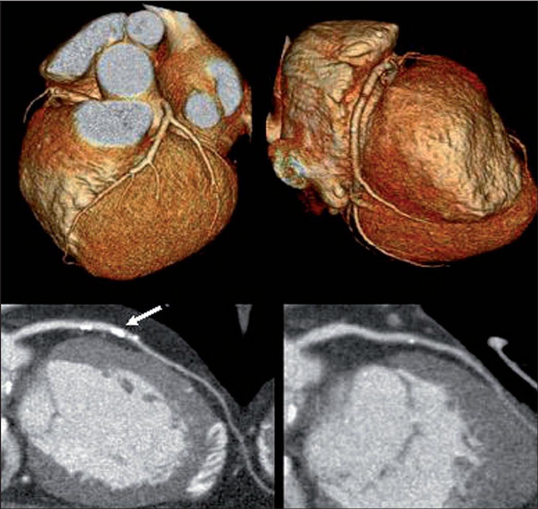 CT kontrastní angiografie – v horní části obrázku trojrozměrné zobrazení koronárních tepen získané na základě náplně tepen a srdečních struktur kontrastní látkou. V dolní části obrázku dvojrozměrné zobrazení koronárních tepen vhodné k posouzení stupně obstrukce tepen. šipka ukazuje na místo s kalcifikací ve stěně tepny, kde se nelze jednoznačně vyjádřit ke stupni obstrukce.