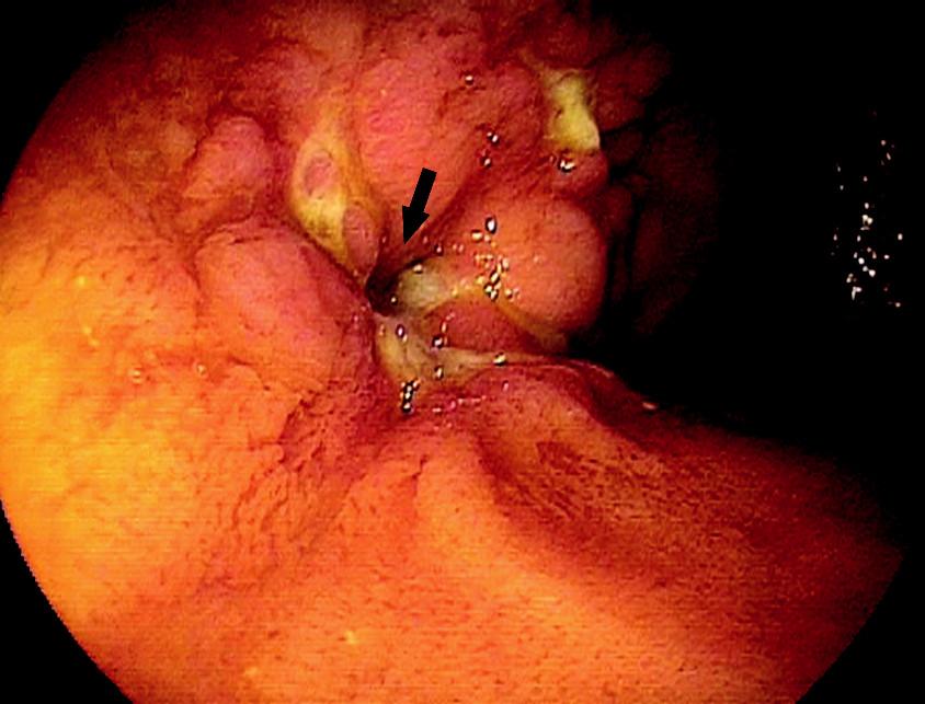 Obr. 2A. Crohnova choroba, zánětlivá stenóza (šipka) s prestenotickou dilatací jejuna