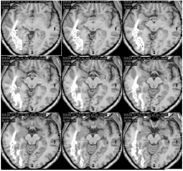 Fúze optické traktografie do neuronavigačního vyšetření před pravostrannou ATL