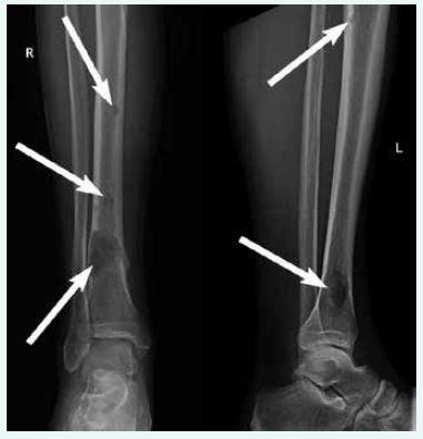Skiagrafie skeletu bérců v době diagnózy
