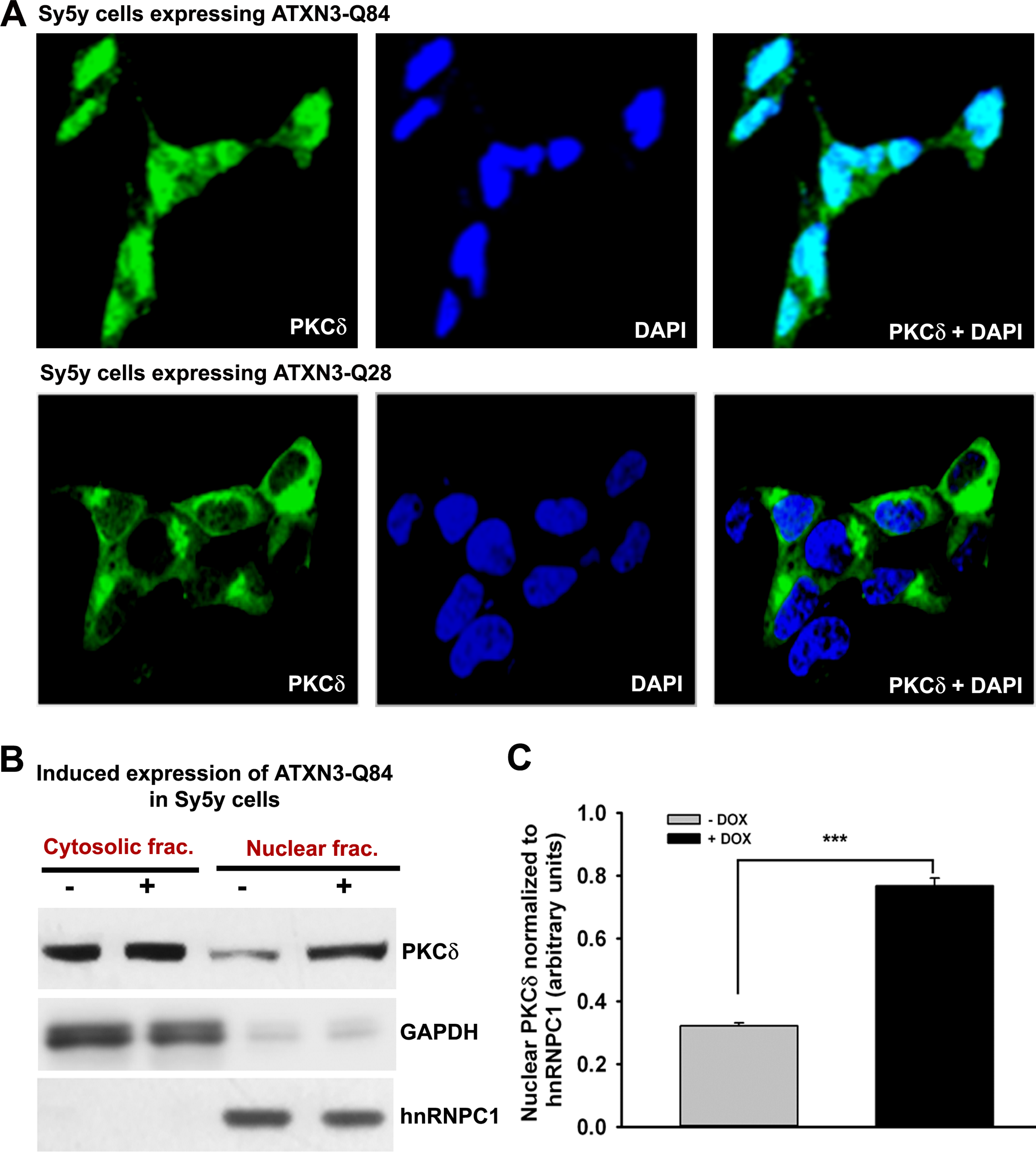 Expression of ATXN3-Q84 in SH-SY5Y cells facilitates nuclear translocation of PKCδ.