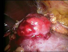 Obr. 1b. Provedli jsme laparoskopickou resekci tumoru, jednalo se o AML Fig. 1b. We performed a laparoscopic tumour resection; AML was found