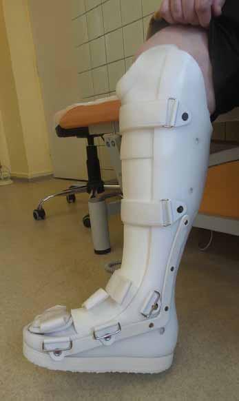 Individuální ortéza – vyrobena na základě měrných podkladů jednotlivého pacienta.