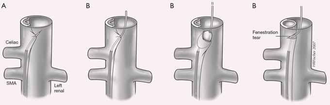 Fenestrace intimal flap. Z pozice utlačeného pravého kanálu je transeptální jehlou propíchnut pod skiagrafickou či IVUS kontrolou intimal flap se zavedením intervenčního vodiče, po kterém je zaveden do oblasti fenestrace balonkový katetr s vytvořením dostatečné komunikace mezi pravým  a falešným kanálem.