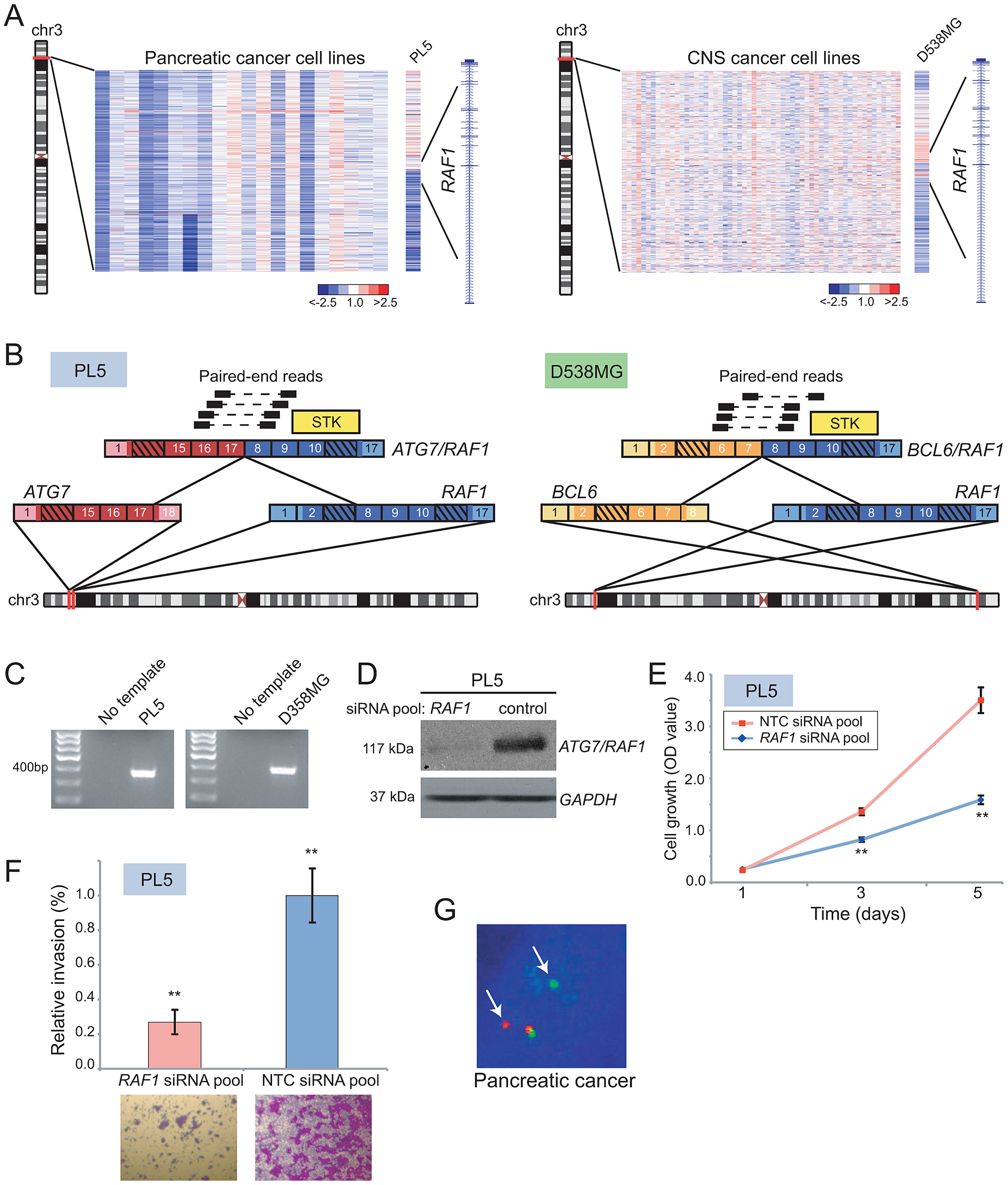Identification and characterization of novel <i>RAF1</i> gene fusions in pancreatic cancer and anaplastic astrocytoma.