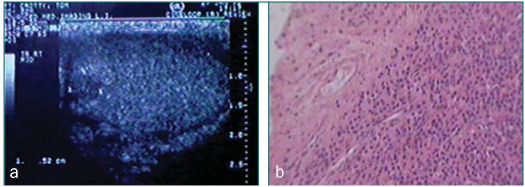 Schéma 25 a,b. Atrofické varle s nehmatným tumorem z Leydigových buněk.