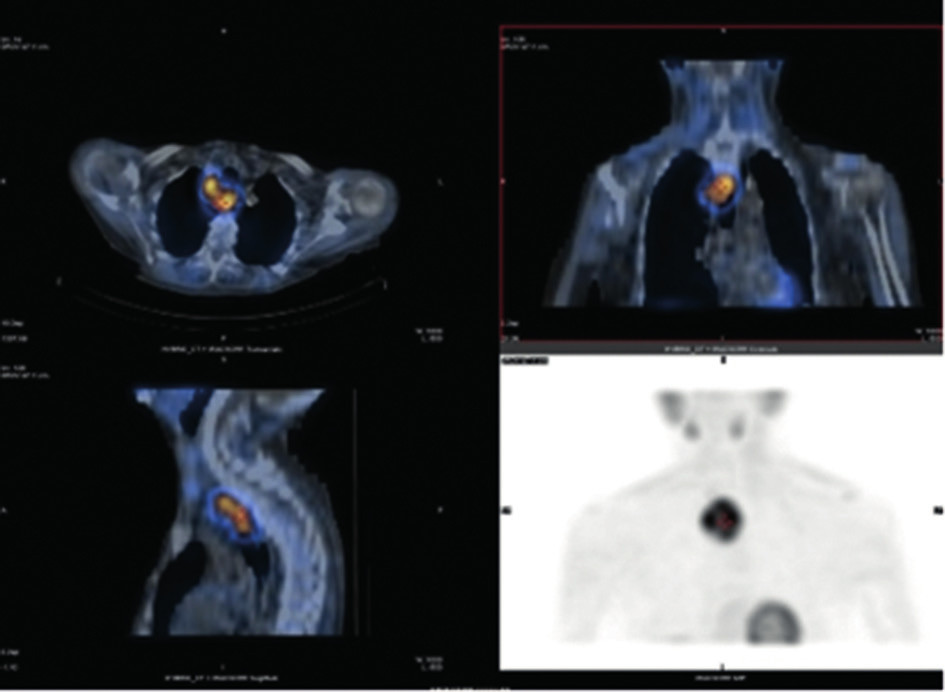 SPECT/CT − kazuistika 2