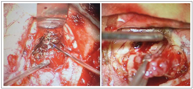 Perioperační pohled na resekci. Fig. 1. Perioperative view on resection.