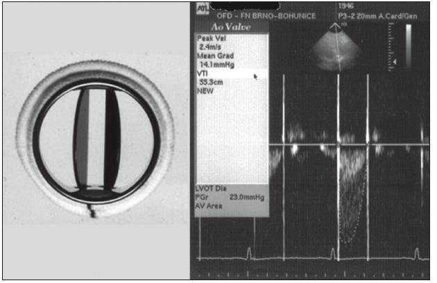 Reziduální tlakový gradient na mechanické chlopenní protéze typu SJM (Saint Jude Medical): vrcholový 23, střední 14 mm Hg.