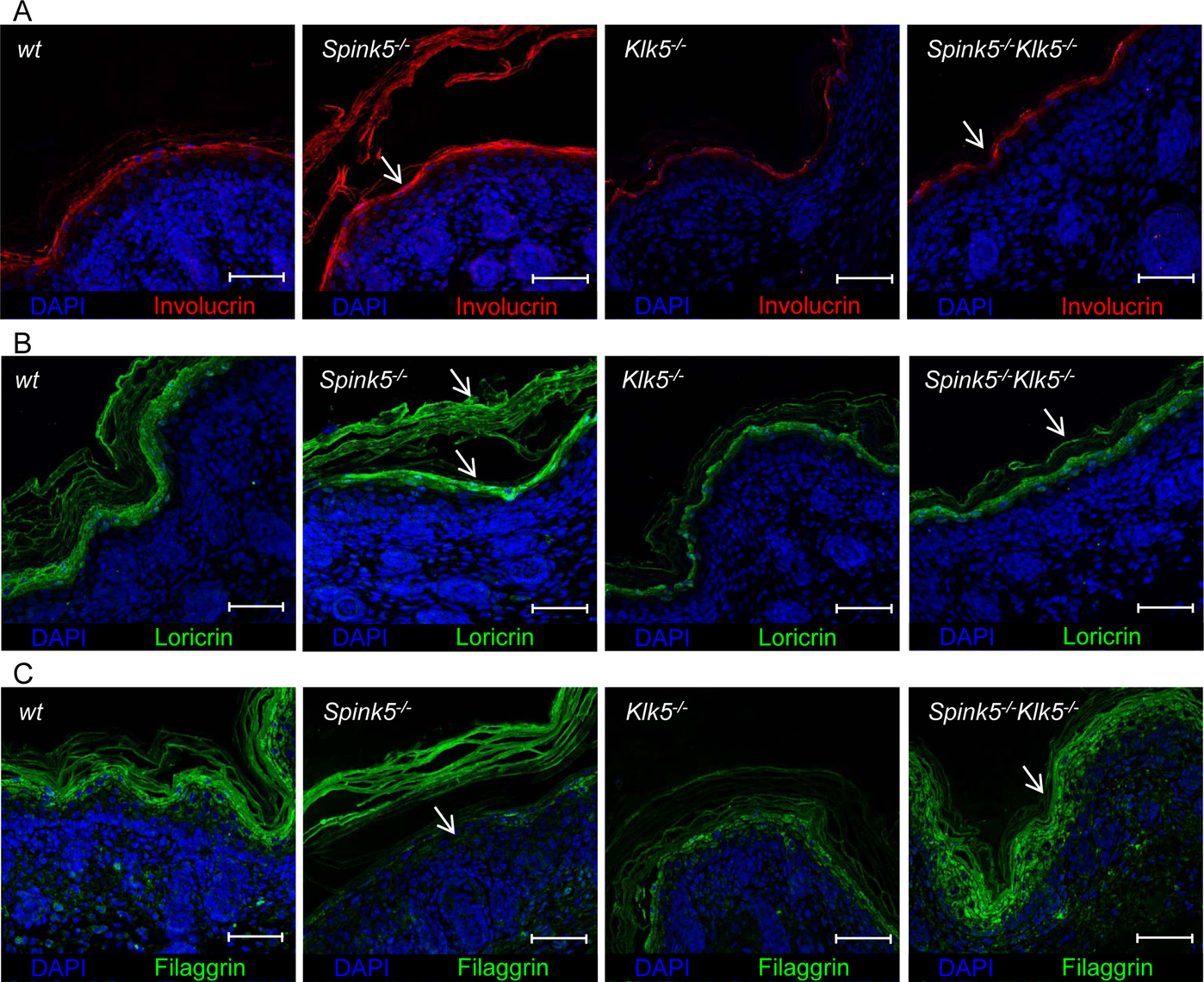 <i>Spink5</i><sup><i>-/-</i></sup><i>Klk5</i><sup><i>-/-</i></sup> skin does not show evidence of abnormal epidermal differentiation.