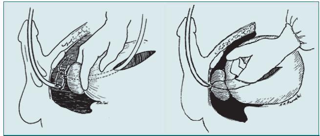 Poranění zadní části močové trubice. Obnovení kontinuity močové trubice pomocí otevřeného přístupu.