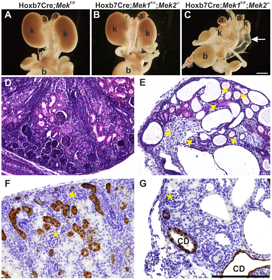 Genetic ablation of MAPK pathway specifically in ureteric bud epithelium results in severe renal hypodysplasia.