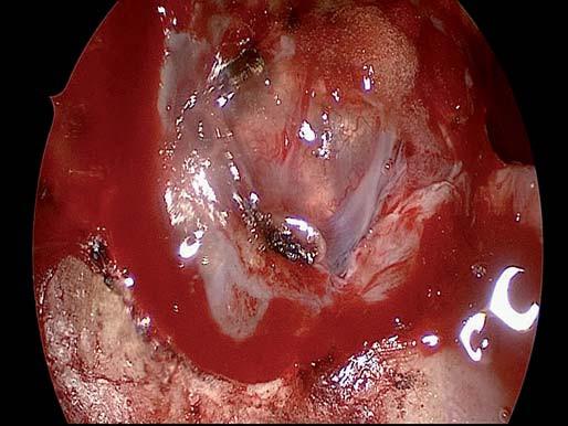 Endoskopický pohled na kraniofaryngeom po otevření tvrdé pleny.