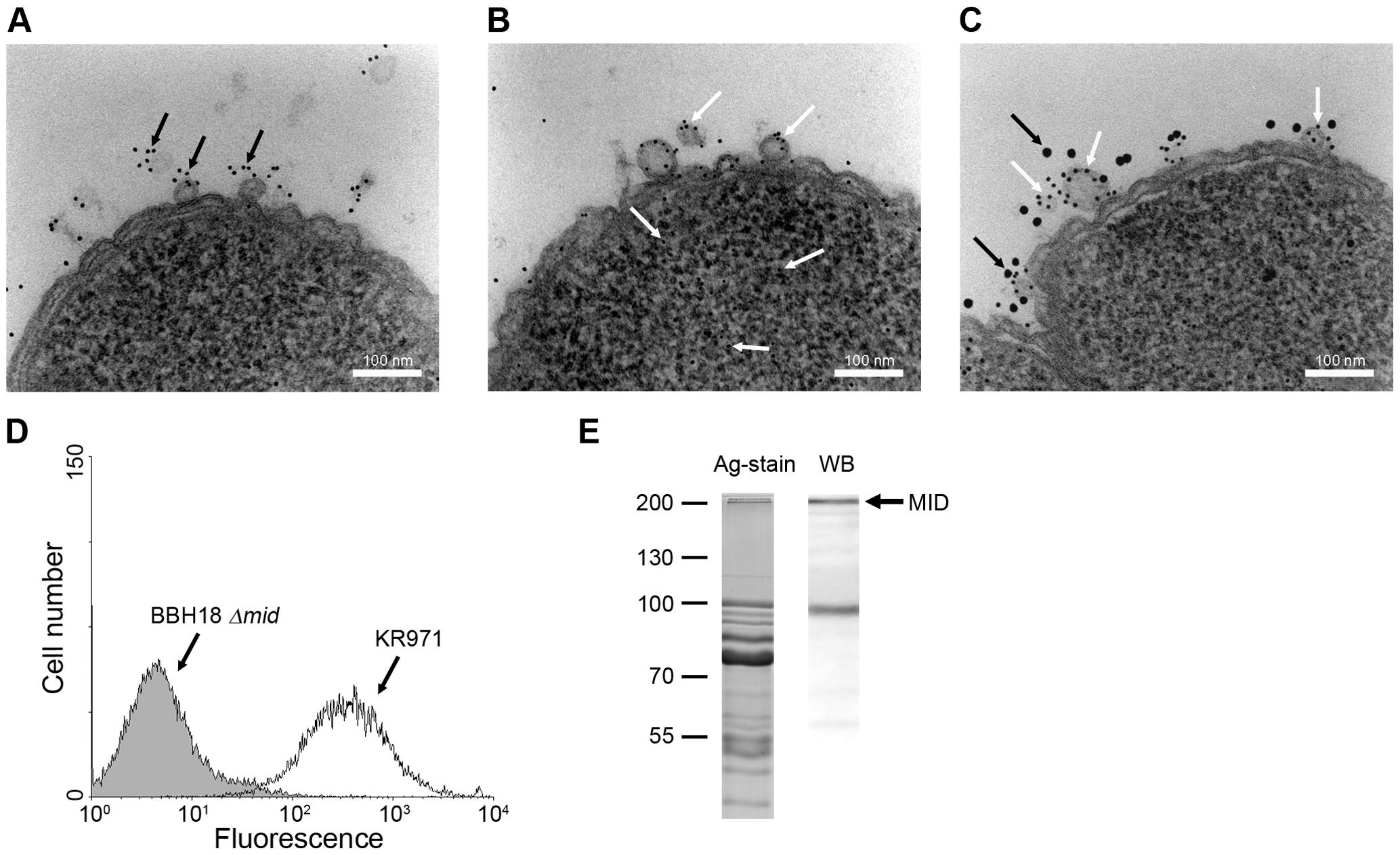 <i>M</i>. <i>catarrhalis</i> OMV secreted <i>in vivo</i> contain MID and DNA.