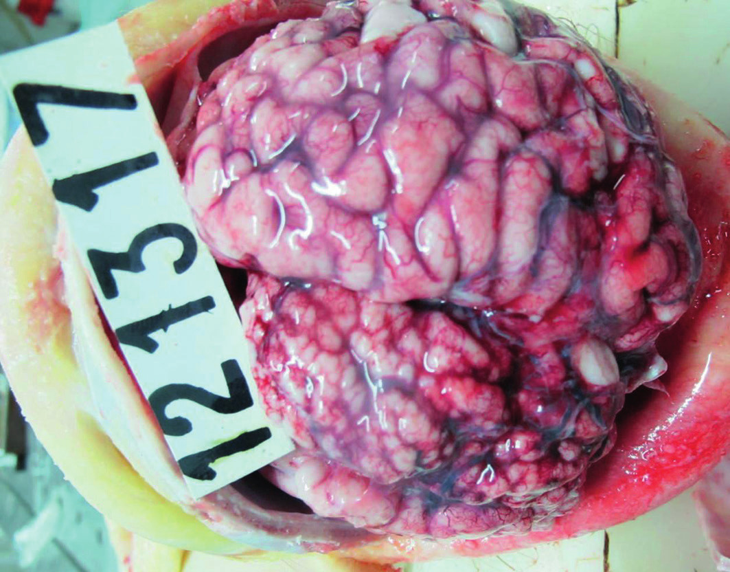 Fig. 1. Macroscopic view: A hypoplastic appearance of frontal, and parietal lobes of the left cerebral hemispheres.