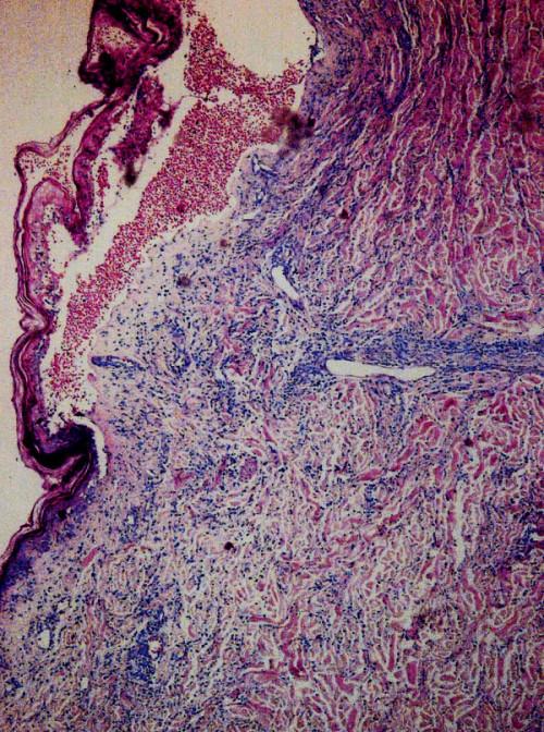 Histologický obraz blíže nespecifikovaného kožního T-lymfomu, Giemsa 60x.