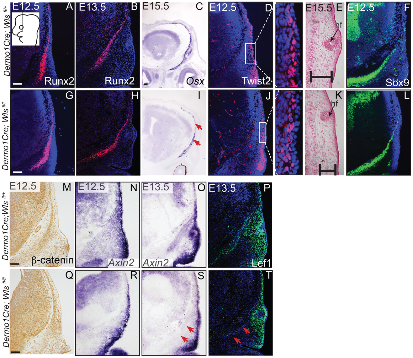 Mesenchyme deletion of <i>Wntless</i> leads to diminished differentiation and Wnt responsiveness in the bone lineage.