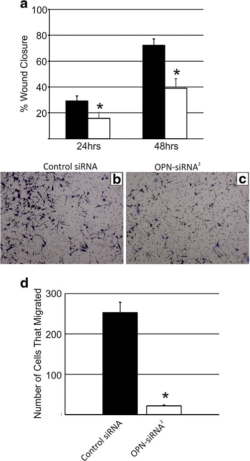 Quantification of (a) RJ348 cell migration following treatment with a GC control siRNA or OPN-siRNA<sup>2</sup> as determined by a scratch wound assay 24 or 48 h after scratch induction. Representative images of RJ348 cells that migrated to the opposite side of a transwell assay following treatment with (b) GC control siRNA or (c) OPN-siRNA<sup>2</sup>. The bars represent mean ± SEM. A paired T-test was used to determine statistical significance, *<i>p</i>˂0.05, n = 3. (d) Quantification of the number of cells that migrated in the transwell assay after treatment with a GC control siRNA or OPN-siRNA<sup>2</sup>. The bars represent mean ± SEM. A paired t-test was used to determine statistical significance, *<i>p</i>˂0.05, n ≥ 3