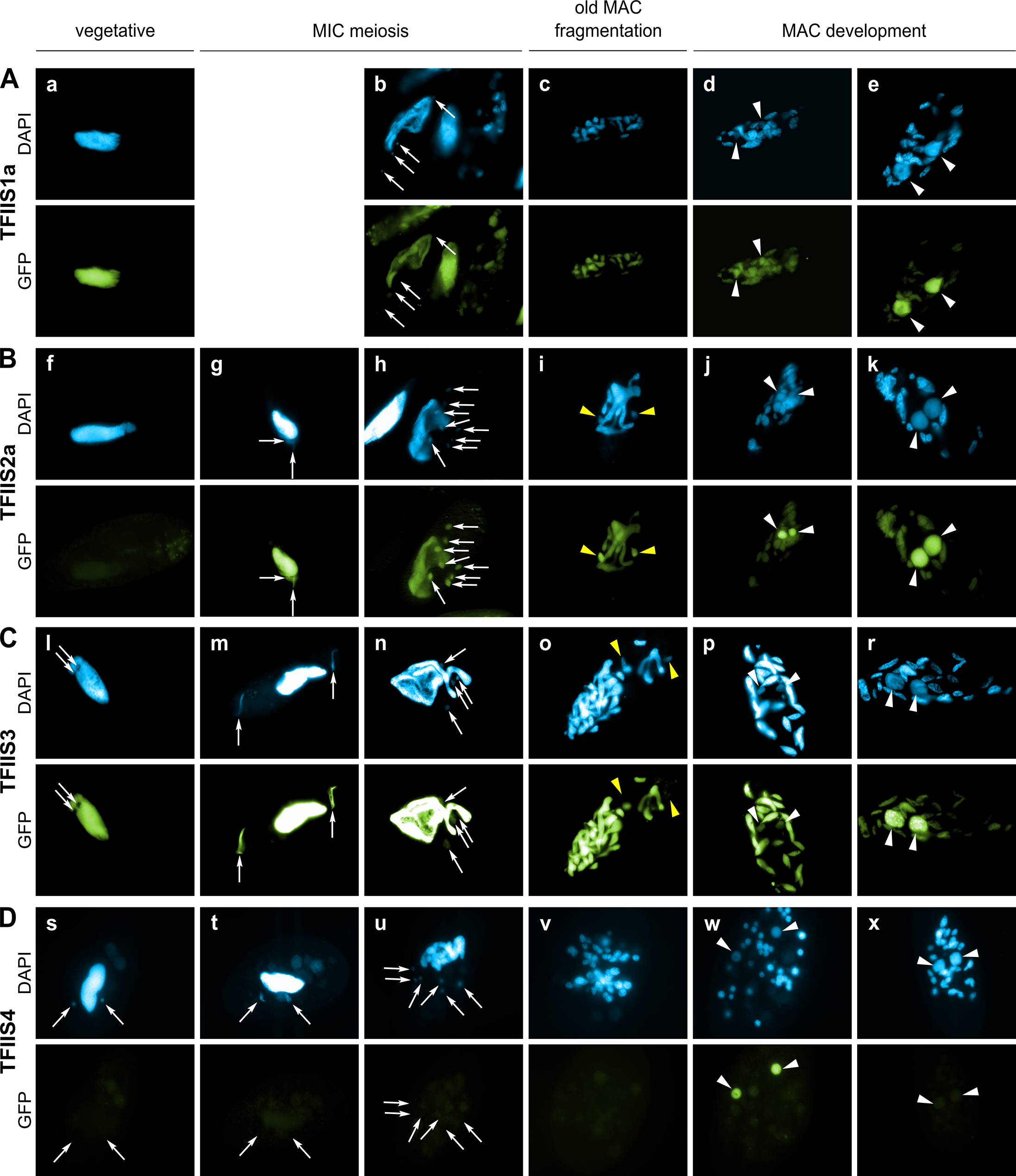Localization of GFP fusion proteins forTFIIS1a, TFIIS2a, TFIIS3 and TFIIS4.