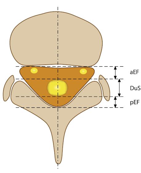 Schéma transverzálního řezu páteře s označením parametrů pro hodnocení epidurální lipomatózy (viz tab. 1, modifikováno dle Artner et al [4]).