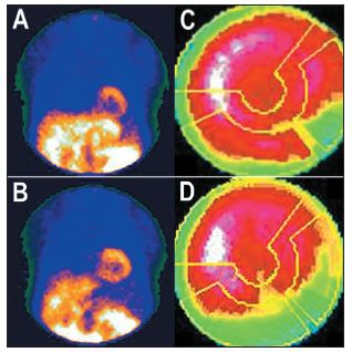 """Příklad studie, u níž se část střeva nachází v těsné blízkosti spodní stěny myokardu – viz vybraný snímek tomografického záznamu (A). V tomto případě je překrytím stěny myokardu střevem """"zamaskována"""" oblast se sníženou perfuzí myokardu – polární mapa (C). Na opakovaném záznamu po odsunutí radioaktivity do nižších partií zažívacího traktu střevní peristaltikou – viz vybraný snímek tomografického záznamu (B) – se uvedený artefakt již nezobrazuje – polární mapa (D)."""