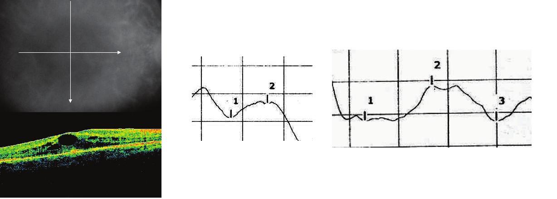 Pigmentózna dystrofia sietnice 6a Obraz OCT, 6b Fotopický záznam ERG, 6c Záznam VEP