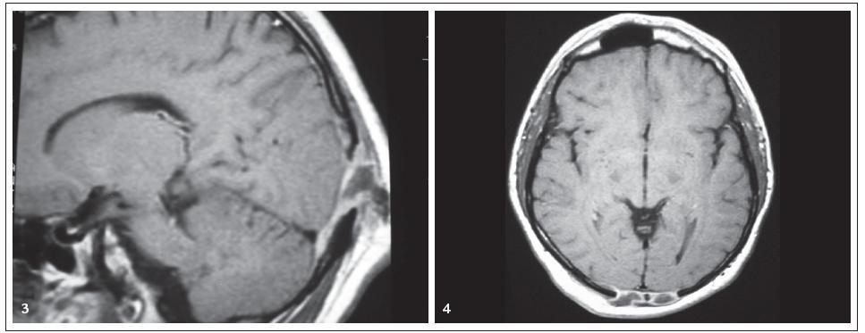 Obr. 3, 4. Pacient s histiocytózou z Langerhansových buněk. MR mozku, T1 vážený obraz po aplikaci kontrastní látky, axiální a sagitální projekce. Osteolýza kalvy s infiltrací mening.