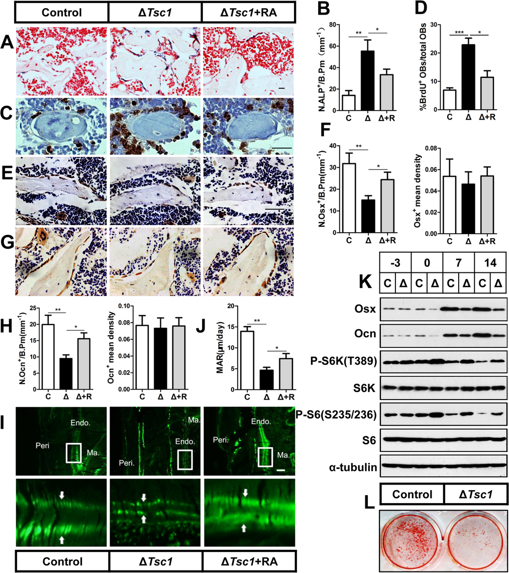 mTORC1 promotes proliferation of preosteoblasts but prevents their maturation.