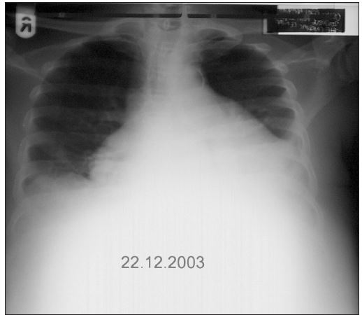 RTG srdce a plic (22. 12. 2003): Výrazné oboustranné rozšíření srdečního stínu, hrotem ke stěně hrudní, s menším bazálním výpotkem vlevo, plicní parenchym bez ložiskových změn, ateromatóza aorty.