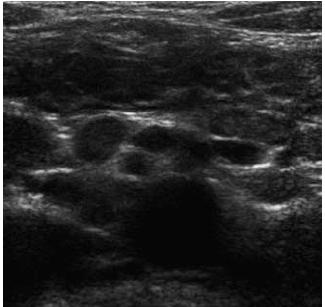 Celiakální sprue – mesenteriální lymfadenopatie. Fig. 8. Celiac sprue – mesenterial lymphadenopathy.