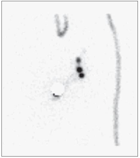 Zobrazení několika uzlin v různých lokalizacích. In vivo nebylo možno jednoznačně odlišit. Aktivita dvou uzlin byla obdobná.