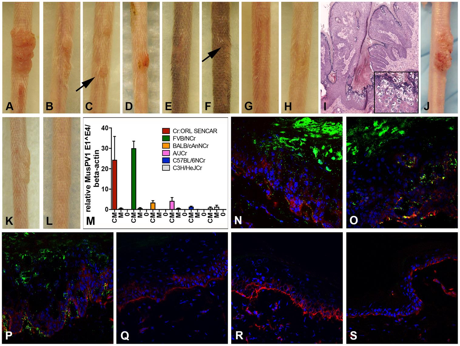 Cyclosporin (CsA) administration promotes MusPV1 infection and strain-dependent papilloma formation.