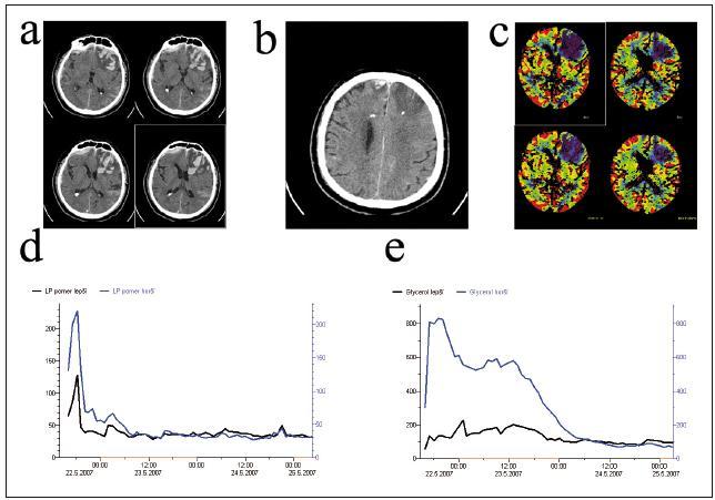 Bilaterální monitorace. Pacient s velkou kontuzí v levém frontálním laloku a drobným subdurálním hematomem a drobnou kontuzí v pravém frontálním laloku (a). Čidla mikrodialýzy a tkáňové oxymetrie byla implantována do obou frontálních laloků (b). Perfuzní CT mozku po implantaci ukazuje poruchu perfuze v oblasti kontuze (c). Hodnoty tkáňového metabolizmu byly v levé hemisféře (horší) byly zpočátku patologické a vyšší v porovnání s pravou (lepší) hemisférou. V průběhu další monitorace jsme díky minimalizaci sekundárních inzultů pozorovali stabilizaci hodnot tkáňového metabolizmu v levém, horším frontálním laloku. Zatímco hodnoty LP poměru v levé hemisféře se srovnaly s hodnotami v pravé hemisféře po 15 hod (d), hodnoty glycerolu se srovnaly s levou hemisférou až po 37 hod (e).