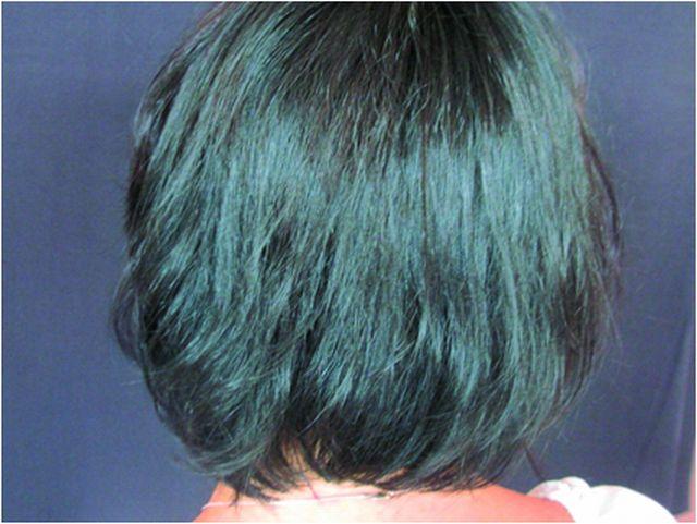 Alopecia areata – po léčbě (celkově kortikosteroidy, místně cygnolin)