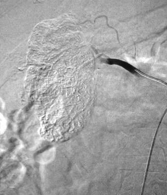 Kontrolní angiografie pravé renální tepny po embolizaci směsí spongostanové kaše a olejové kontrastní látky.