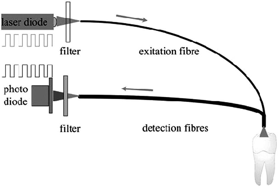 Schéma přístroje DIAGNOdent (fa KaVo) [4]