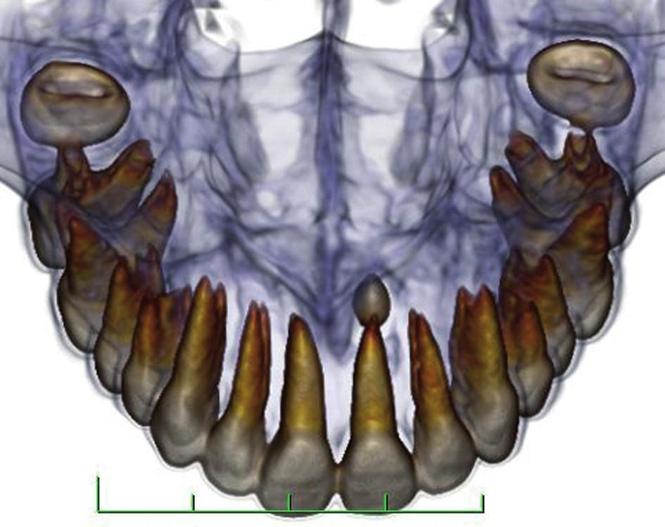 Meziodens v CT obrazu z frontálního pohledu