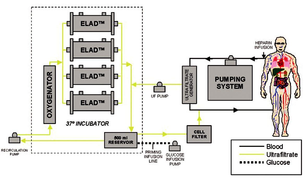 Schéma zapojení systému ELAD  (převzato z www.vitaltherapies.com). Fig. 2. The ELAD system integration scheme  (adopted from www.vitaltherapies.com).