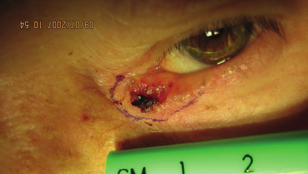 Zakreslenie rozsahu ložiska v oblasti dolného slzného bodu pred excíziou (histologické vyšetrenie potvrdilo bazocelulárny karcinóm G1, nodulárny typ)