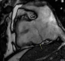 Lokalizované aneuryzma báze spodní stěny pravé komory v subtrikuspidální oblasti (žlutá šipka) u nemocného s arytmogenní kardiomyopatií pravé komory; projekce na vtok pravé komory