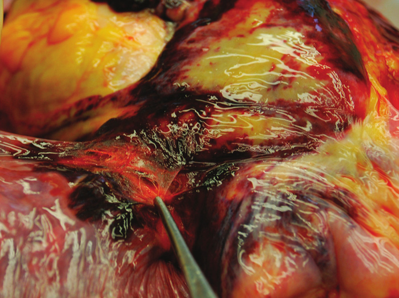 Krevní výrony a trhliny v plicním hilu.