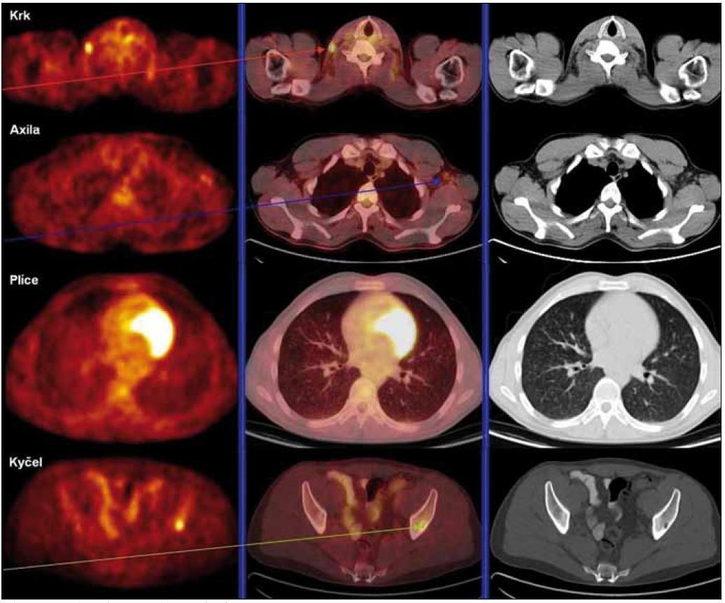 Obr. 8. PET/ low dose CT (listopad roku 2009). Krk: ložisko zvýšené akumulace radiofarmaka (SUV<sub>max</sub> 4,8) korelující s uzlinou velikosti 14 × 5 mm na bazi krku vpravo. Axila: v levé axile jednotlivé reziduální uzliny do 1 cm s hraniční mírou akumulace radiofarmaka. Plíce: četné drobné nodularity – ve srovnání se vstupním vyšetřením pravděpodobně došlo k regresi velikosti opacit. Difuzně je nepatrně vyšší akumulace radiofarmaka v parenchymu obou plic. Kyčel: ložisko zvýšené akumulace radiofarmaka (SUV<sub>max</sub> 9,8) korelující s drobným osteolytickým defektem asi 12 mm v delší ose.