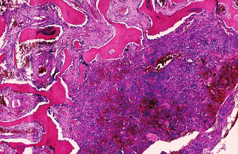Centrální obrovskobuněčná léze čelisti tvořená vazivovou tkání s příměsí obrovských vícejaderných buněk typu osteoklastů především v místech hemoragií. V ohraničujícím vazivovém septu je nenádorová metaplastická osifikace. HE, x40.